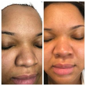 sherita's facial before and after